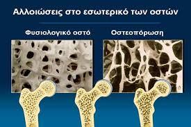 οστεοπώροση